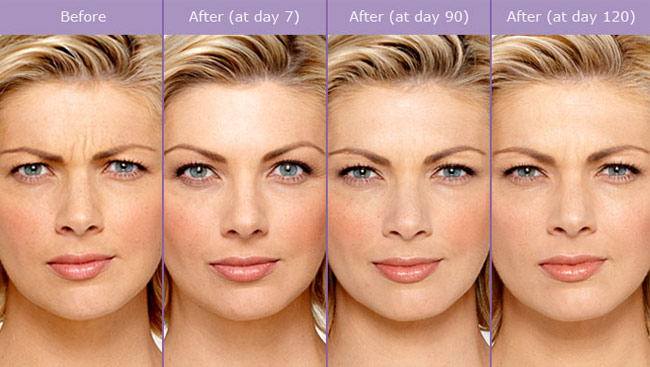 Botox® Cosmetic photos taken at maximum frown both before and after treatment. Individual results may vary.